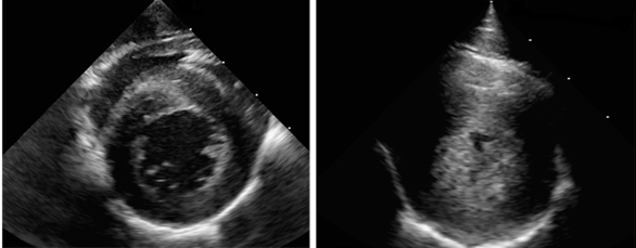 A short axis echocardiogram image is shown at the level of the left ventricle during contraction. The normal (control animal) heart is seen on the left, the LVH affected animal's heart is seen on the right. The hypertrophy has nearly obliterated the entire left ventricular lumen.